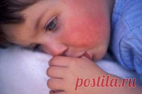 Скарлатина у детей - каждый ответственный и добропорядочный родитель переживает за своих детей и их здоровье. В раннем возрасте иммунитет ребёнка очень слаб, и он легко подвергается различным вирусным и инфекционным заболеваниям. Одной из самых распространённых и неприятных болезней является скарлатина.
