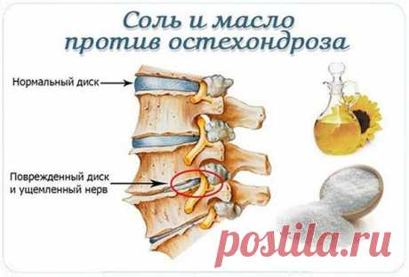 El medio mágico de la osteocondrosis