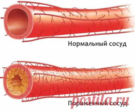 Старое немецкое средство поможет быстро очистить артерии и укрепить организм — Калейдоскоп событий