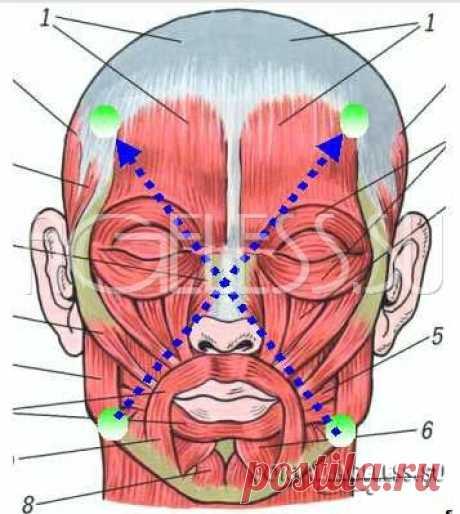 Диагональное сшивание мышц лица - Бенита Кантиени