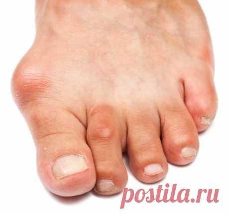 Как избавиться от шишек на пальцах: эффективное лечение