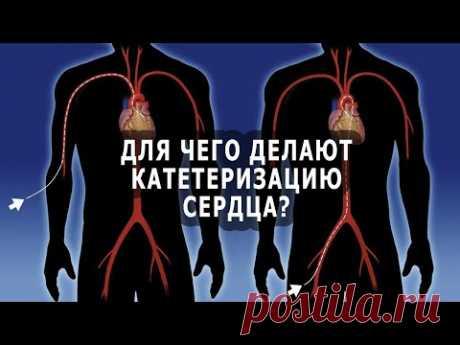 Для чего делают катетеризацию (зондирование) сердца?