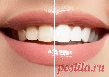 Как отбелить желтые зубы естественным способом в домашних условиях всего за 2 минуты Вы будете удивлены! В этой статье мы узнаем, как отбелить желтые зубы естественным способом. Улыбка может залечить много ран, и это правда. Чистая и