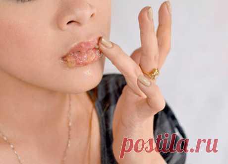 Почему сохнут губы: основные причины и лечение