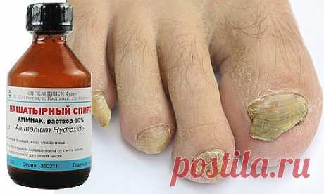 THREE RECIPES OF TREATMENT OF THE FUNGUS ON NAILS\u000d\u000a\u000d\u000a1 spoon of liquid ammonia needs to be parted in a glass of water.\u000d\u000aIn this solution it is necessary to moisten any fabric, but only not synthetic. This rag it is necessary to wrap up the affected finger, to upward put on a cellophane package, and then a sock.\u000d\u000aThese actions need to be repeated within 5 days then the fungus will disappear.\u000d\u000a\u000d\u000aIt is possible to prepare ointment from crude egg, 1 tablespoon of vinegar, 1 tablespoon of vegetable oil and 1 chayno...