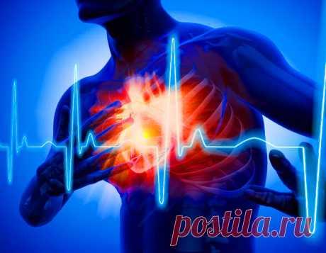 Факты о сердечном приступе, которые стоит знать, если вам жизнь дорога | Безумный Доктор | Яндекс Дзен