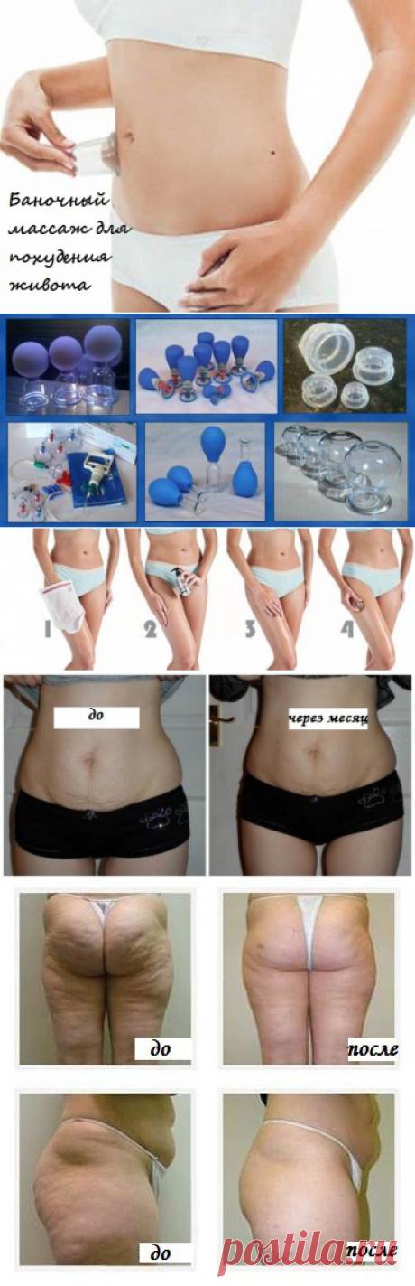 Баночный массаж для похудения живота: отзывы, фото до и после