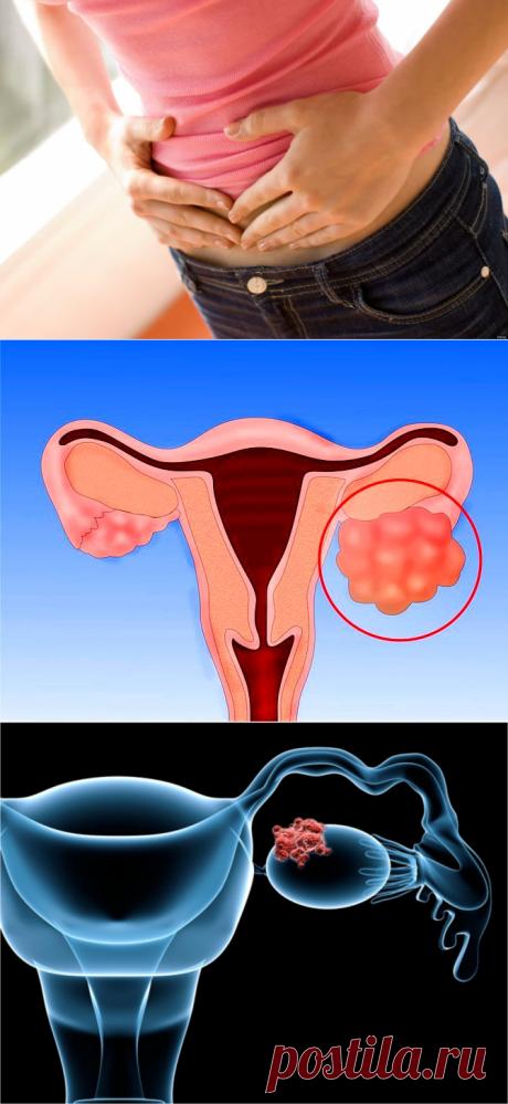 Методы лечения рака яичников.Прогнозы. - likemi.ru