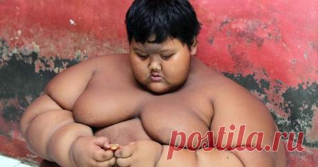 Самый толстый мальчик в мире похудел на 76 килограммов Теперь 12-летний житель острова Ява (Индонезия) Арья Пермана может не только самостоятельно ходить и посещать школу, но также бегать, играть в футбол и бадминтон.