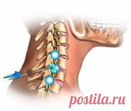 Лучшие упражнения китайской медицины для шейных позвонков Если, выполняя движения головой, вы слышите похрустывание, вам трудно повернуть ее на 90 гр. или при наклонах возникает боль, значит, шея нуждается в лечении.Для усиления эффекта повороты и наклоны головы надо сопровождать движением глаз в том же направлении. Выполнять медленно и...