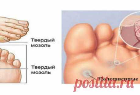 Мозоли и бородавки на ногах: как от них избавиться? - Страна Полезных Советов - медиаплатформа МирТесен