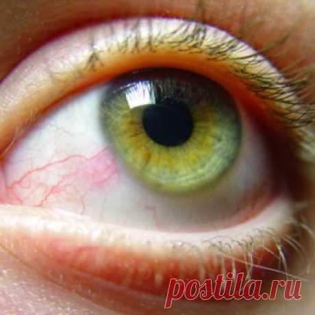 Красные глаза: 10 причин   Maiden.com.ua