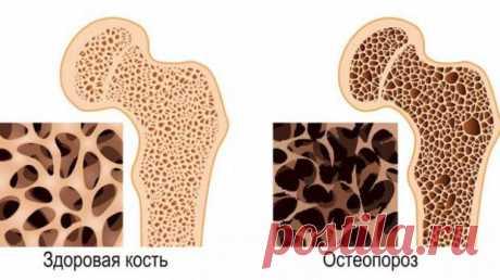 Почему для костей важнее коллаген, чем кальций - Народная медицина - медиаплатформа МирТесен Увеличение содержания коллагена в кости приводит к большей прочности и гибкости, тем самым повышая устойчивость к переломам. Кости состоят из динамичной живой ткани, для поддержания оптимального здоровья которой требуется широкий спектр питательных веществ, а не только минералов, таких как кальций.