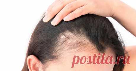 Останови выпадение волос: ТОП-10 продуктов для их укрепления и питания - Будь в форме! - медиаплатформа МирТесен Ваши волосы, как и любая другая часть тела, нуждаются в протеинах, жирах, минералах и витаминах, чтобы поддерживать их в хорошем состоянии. Узнайте несколько хитростей, чтобы остановить выпадение волос, увлажнить и укрепить их. Выпадение волос связано с едой, так как большая часть структуры волос...