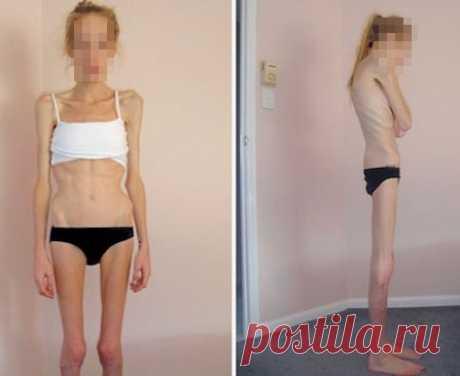 ¡De la obesidad hasta la anorexia un paso!