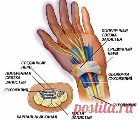 Gymnastics for hands at a tunnel syndrome of a wrist