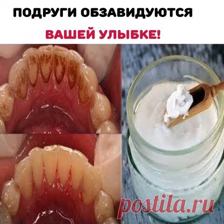 Тщательно перемешай:  - Немного зубной пасты - 1 ч.л. соды - 1 ч.л. перекиси водорода - 1/2 ч.л воды - 1 табл. активированного угля  Просто нанесите на щётку и 2 мин чистите зубы, 1 раз в неделю в течении 1 мес