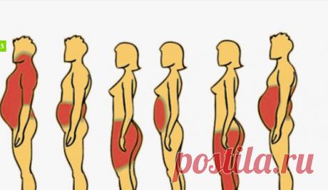 6 типов ожирения, и как с ними справиться