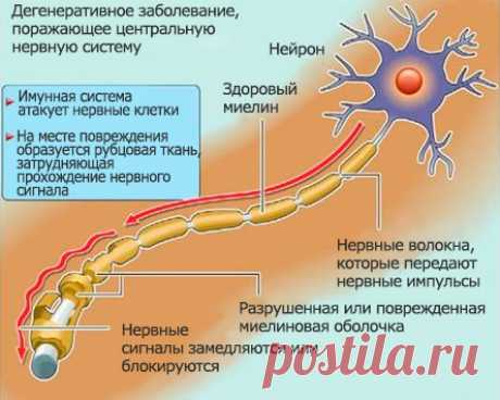 Multiple sclerosis: as arises how to distinguish how to treat