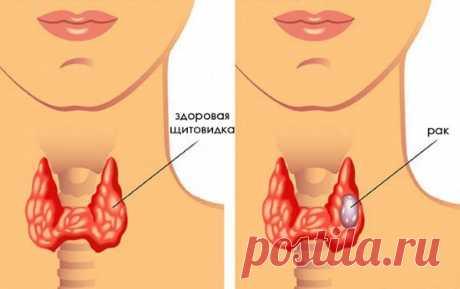 Симптомы заболевания щитовидной железы у женщин после 30, 40, 50 лет. Первые признаки, лечение народными средствами и медикаментозное