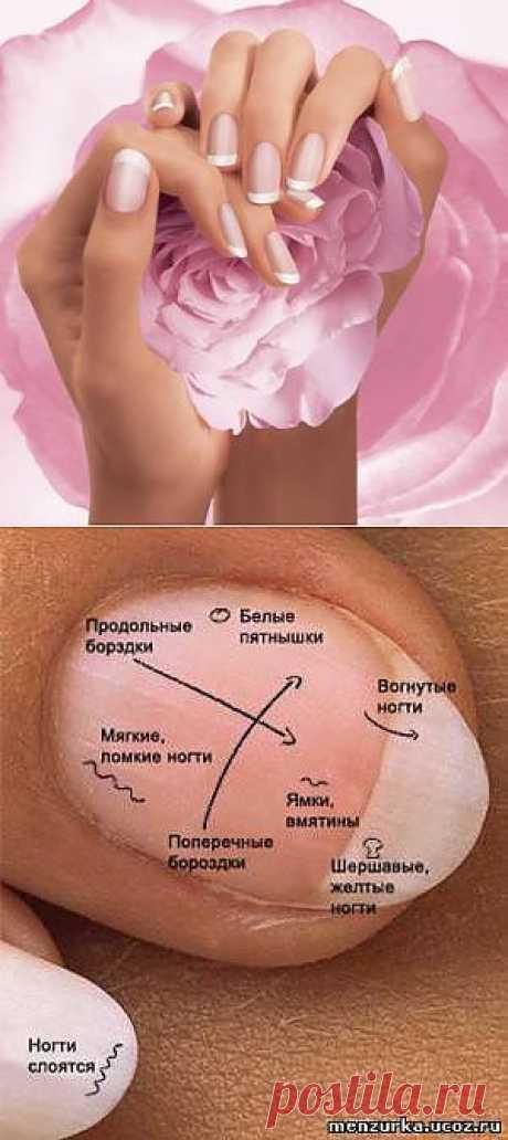 Диагностика болезней по ногтям - Восточная Медицина - Мензурка