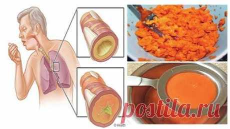 Древний домашний рецепт сиропа, который удаляет мокроту из легких и излечивает от кашля | Люблю Себя