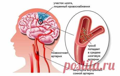5 причин инсульта и средства от его возникновения | экономъ | Яндекс Дзен