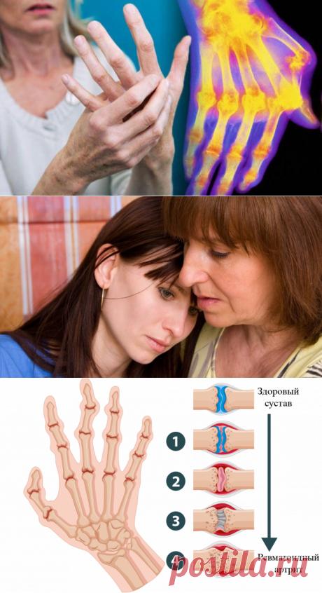 Мне артроз поставили в 50, дочери артрит – в 27 лет! И этот страшный диагноз разделил нашу жизнь на до и после. Но мы нашли средство, которое нас спасло! Бездействие врачей, тяжелое лечение и страшные осложнения… После первых же симптомов мы пошли ко врачу. Первый наш ревматолог, женщина пенсионного возраста, заявила, что никакого ревматоидного артрита в таком возрасте быть не может. Дальше были долгие месяцы походов по другим докторам. Когда год спустя мы по воле случая в...