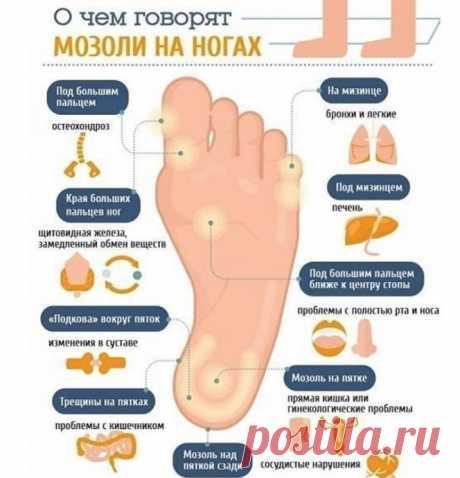 О чем говорят мозоли на ногах
