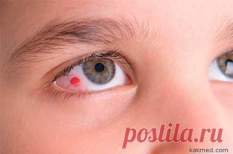Как укрепить кровеносные сосуды глазного яблока?