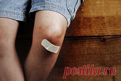De 14 lesiones infantiles veraniegas. Los niños mucho más de tiempo pasan las reglas de los primeros auxilios | Mí Amable En verano sobre el aire, se mueven más activamente y, como esto ni tristemente, surgen más a menudo las lesiones y el daño. Lean con atención y conserven estos consejos para correctamente prestar al niño los primeros auxilios. Las HEMORRAGIAS de la Herida se acompañan de los objetos agudos siempre de las hemorragias, a veces muy fuerte. Además la sangre puede salir por el chorro (la hemorragia arterial) o despacio nakaplivats...