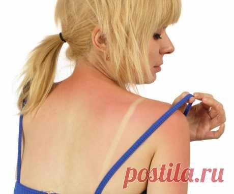 Простое и эффективное средство от солнечных ожогов на отдыхе. Оно всегда под рукой!