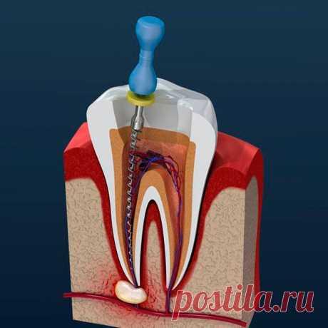 Что важно знать про зубные импланты
