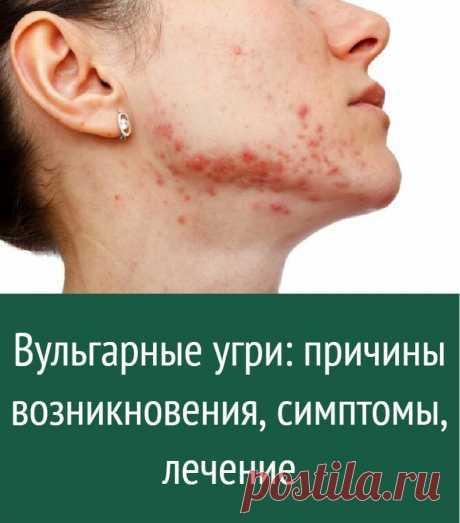 Вульгарные угри: причины возникновения, симптомы, лечение