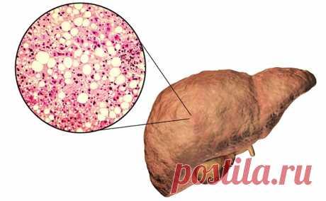 Диффузные изменения печени: что это, симптомы, лечение паренхимы | Gepatitof.ru