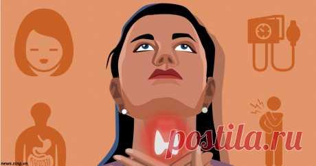 20 признаков того, что ваша щитовидка работает либо слабо, либо чересчур сильно Будьте здоровы! Щитовидная железа вырабатывает гормоны, от которых зависит здоровье всего организма. Две наиболее распространенные проблемы с щитовидной железой связаны с выработкой этих гормонов: гипотиреоз, когда гормонов вырабатывается мало, и гипертиреоз - когда слишком много...