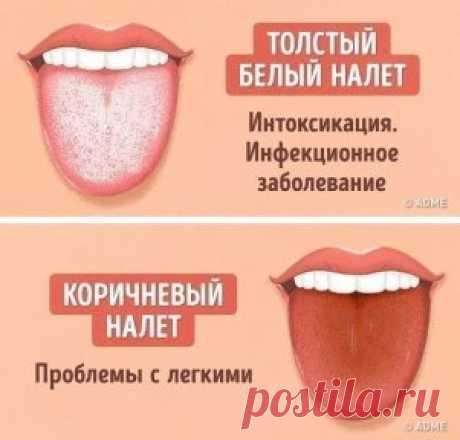 12 проблем, о которых может рассказать цвет языка! #здоровье