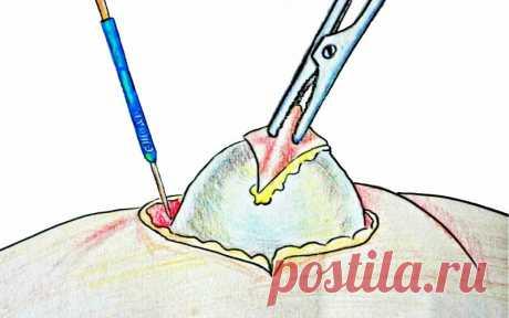 No romperse al cuchillo del cirujano: sacar el lipoma ayudará la película delgada bajo la cáscara del huevo de gallina