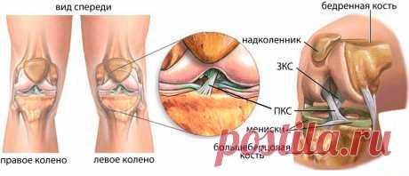 Укрепление сухожилий и связок
