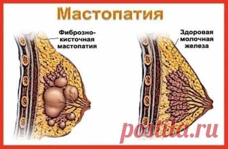 МАСТОПАТИЯ БОИТСЯ ВАЛЕРИАНЫ И ЗВЕРОБОЯ Услышав от врачей диагноз «мастопатия», многие женщины впадают в отчаяние. И не случайно. Большинство не знает, как это заболевание лечить и как с ним жить. Доктора зачастую никакого лечения не предлагают. Советуют лишь проверять молочные железы каждый год, а вот если уплотнение начнет расти, тогда … придется, видимо, оперировать. Утешение, сами понимаете, слабое. А вот народная медицина знает немало естественных средств, с помощью которых можно облегчить