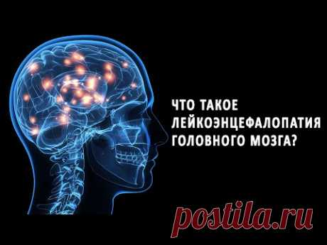 Что такое лейкоэнцефалопатия головного мозга?