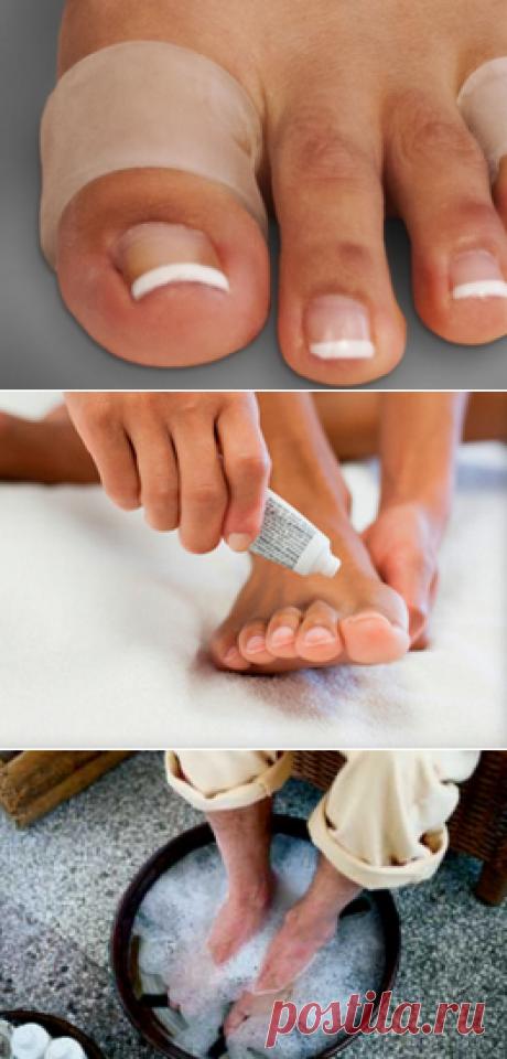 Как быстро убрать мозоли на ногах – только проверенные способы | Наросты на коже