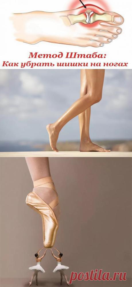 Как убрать шишки на ногах? Метод Штаба   Всегда в форме!