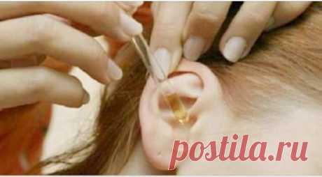 Самый простой и безопасный способ устранения серных пробок в ушах — OhGirl.ru — Женский журнал о красоте, моде, здоровье, психологии, любви, доме, стильной жизни