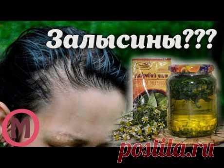 СУПЕР СРЕДСТВО ОТ ОБЛЫСЕНИЯ и залысин у женщин. Что делать если сильно выпадают волосы на голове