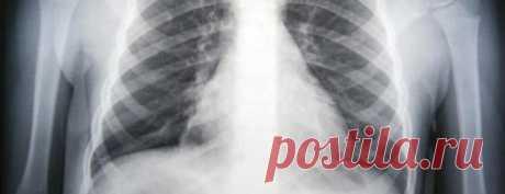 11 ошибок при лечении пневмонии: что опасно, безопасно и бесполезно