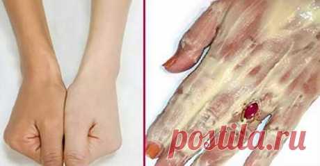 Магическая формула для отбеливания кожи! Вы должны это попробовать!