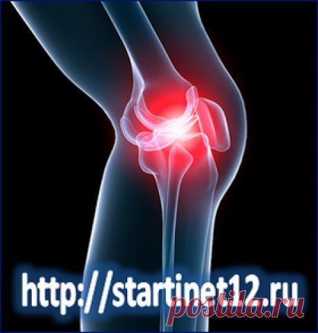 Деформирующий артроз коленных суставов. Причины. Симптомы. Лечение.