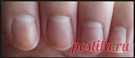 Грибок ногтей на руках (онихомикоз): симптомы, лечение. Фото Инфекционные заболевания › Грибковые заболевания (микозы)  Перейти к разделу Признаки и симптомы грибка ногтей на руках - На фото первые признаки грибка ... На фото грибок ногтей на руках.