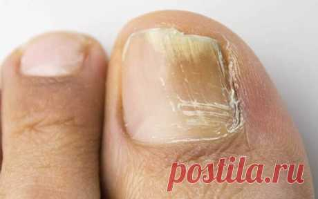 Как лечила грибок ногтей моя бабушка | Здоровье проявляет красоту | Яндекс Дзен